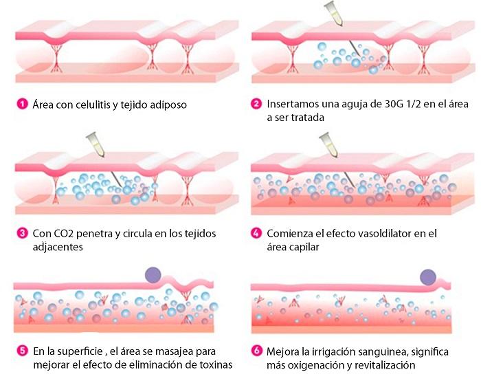 1g-activacion-de-la-microcirculacion
